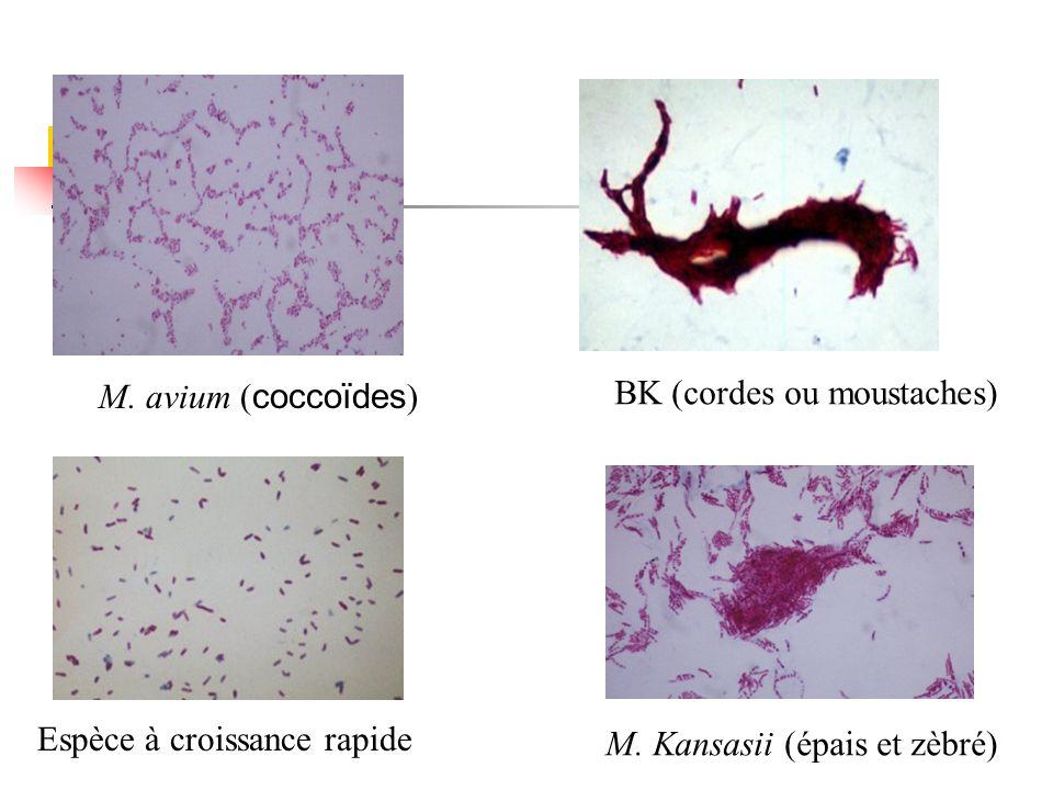 M. avium ( coccoïdes ) BK (cordes ou moustaches) Espèce à croissance rapide M. Kansasii (épais et zèbré)