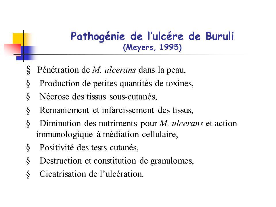 Pathogénie de lulcére de Buruli (Meyers, 1995) Pénétration de M. ulcerans dans la peau, § Production de petites quantités de toxines, § Nécrose des ti