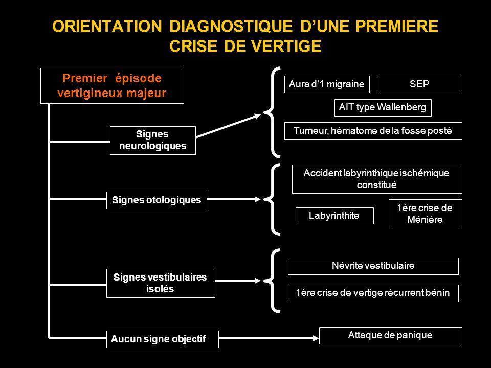 ORIENTATION DIAGNOSTIQUE DUNE PREMIERE CRISE DE VERTIGE Premier épisode vertigineux majeur Signes neurologiques Signes otologiques Signes vestibulaire