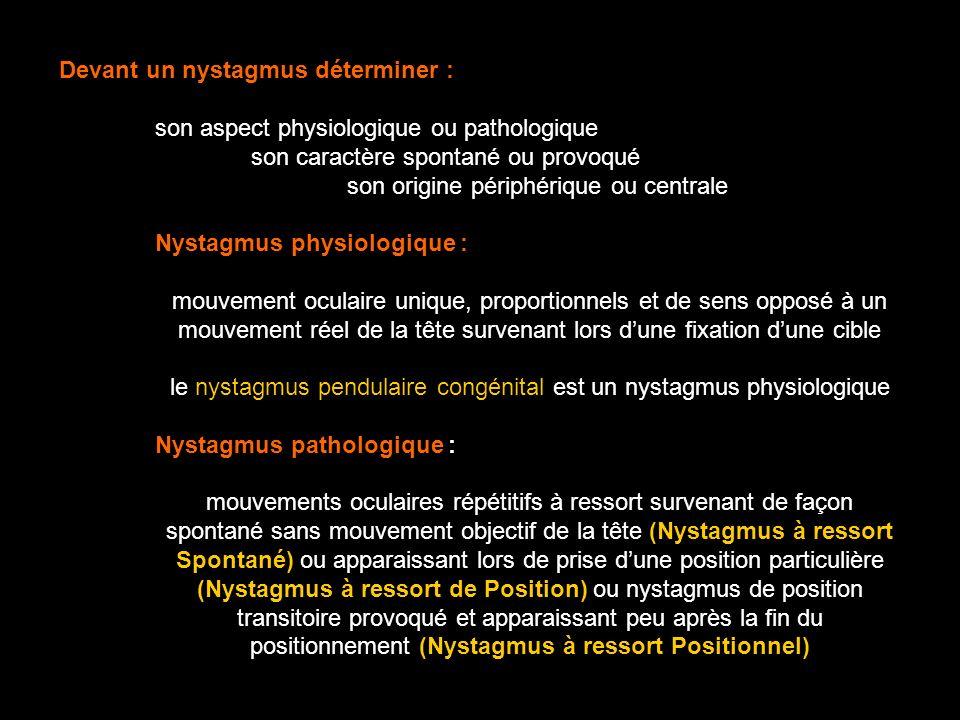 Devant un nystagmus déterminer : son aspect physiologique ou pathologique son caractère spontané ou provoqué son origine périphérique ou centrale Nyst