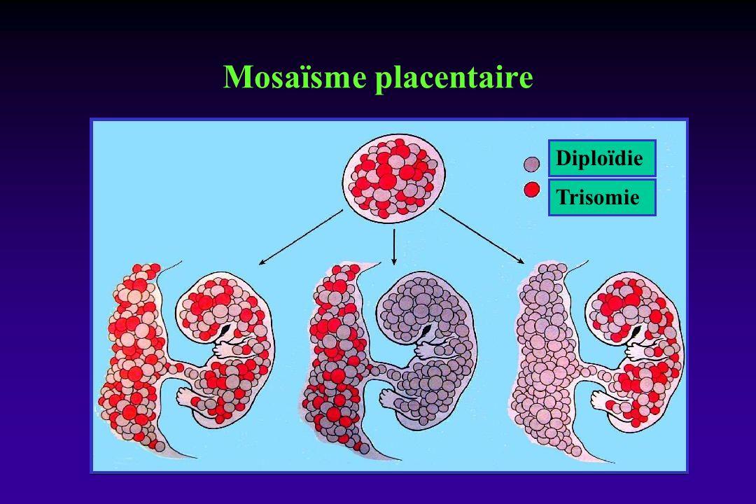 Trisomie Diploïdie Mosaïsme placentaire