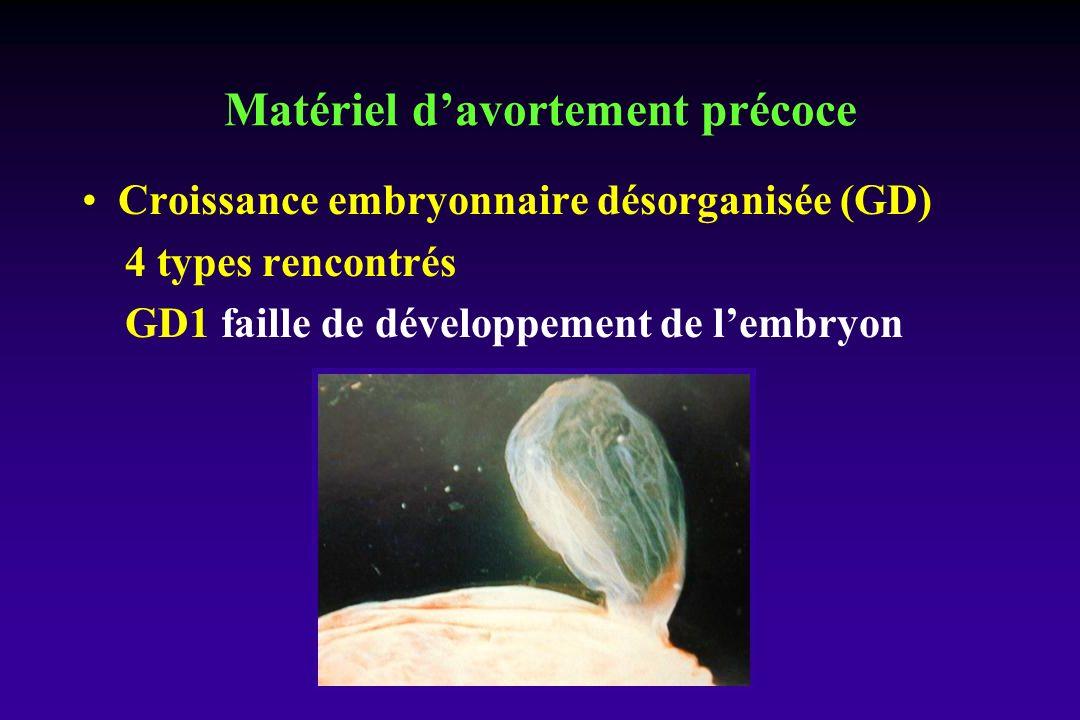 Croissance embryonnaire désorganisée (GD) 4 types rencontrés GD1 faille de développement de lembryon Matériel davortement précoce