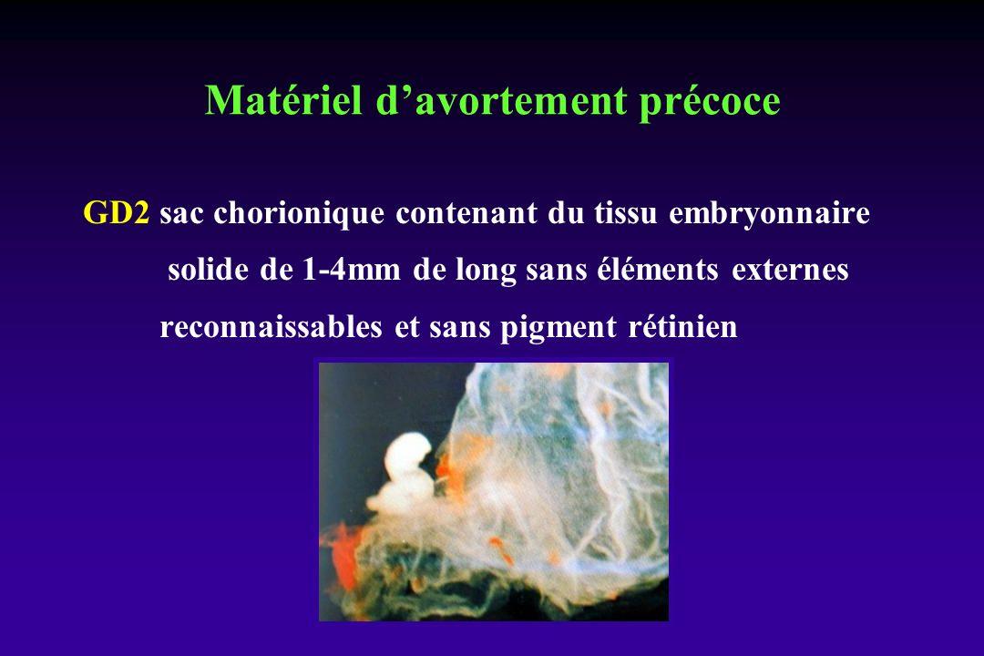 GD2 sac chorionique contenant du tissu embryonnaire solide de 1-4mm de long sans éléments externes reconnaissables et sans pigment rétinien Matériel d