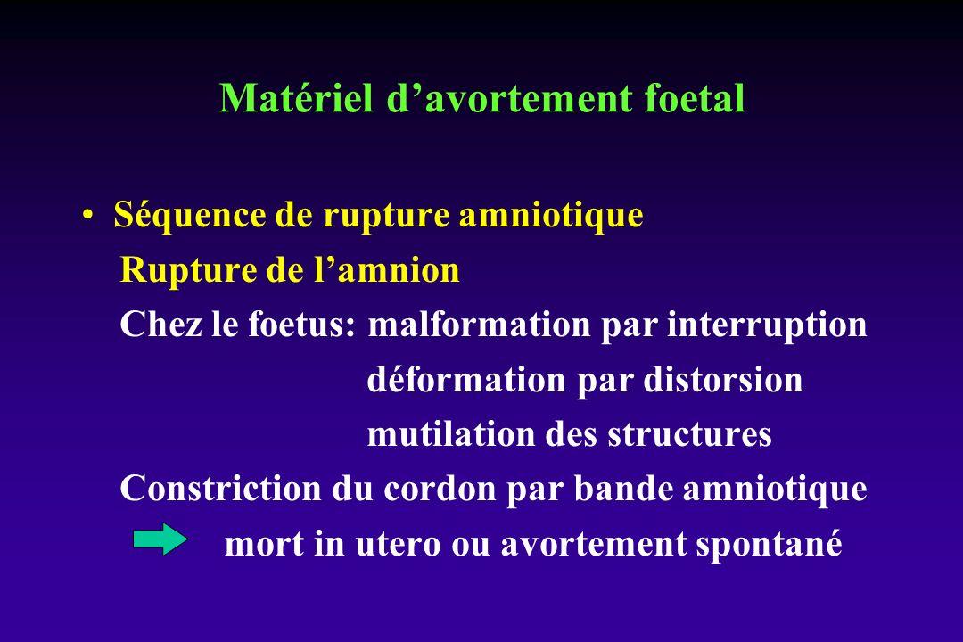 Séquence de rupture amniotique Rupture de lamnion Chez le foetus: malformation par interruption déformation par distorsion mutilation des structures Constriction du cordon par bande amniotique mort in utero ou avortement spontané Matériel davortement foetal