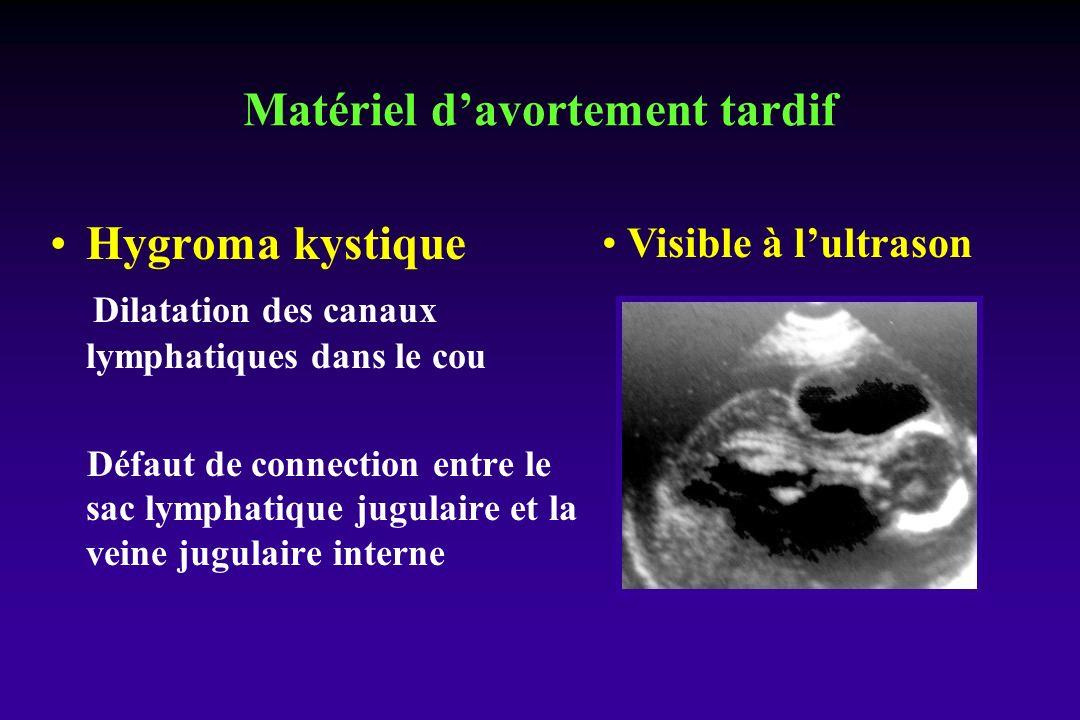 Hygroma kystique Dilatation des canaux lymphatiques dans le cou Défaut de connection entre le sac lymphatique jugulaire et la veine jugulaire interne Visible à lultrason Matériel davortement tardif