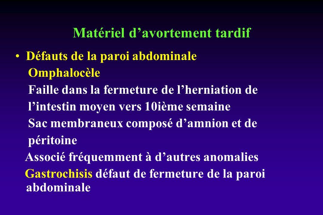 Défauts de la paroi abdominale Omphalocèle Faille dans la fermeture de lherniation de lintestin moyen vers 10ième semaine Sac membraneux composé damni