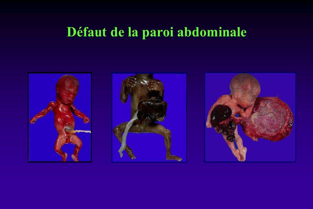 Défaut de la paroi abdominale