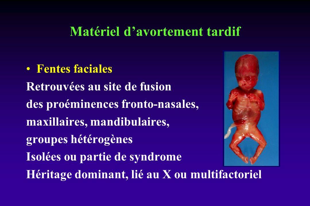 Fentes faciales Retrouvées au site de fusion des proéminences fronto-nasales, maxillaires, mandibulaires, groupes hétérogènes Isolées ou partie de syndrome Héritage dominant, lié au X ou multifactoriel Matériel davortement tardif