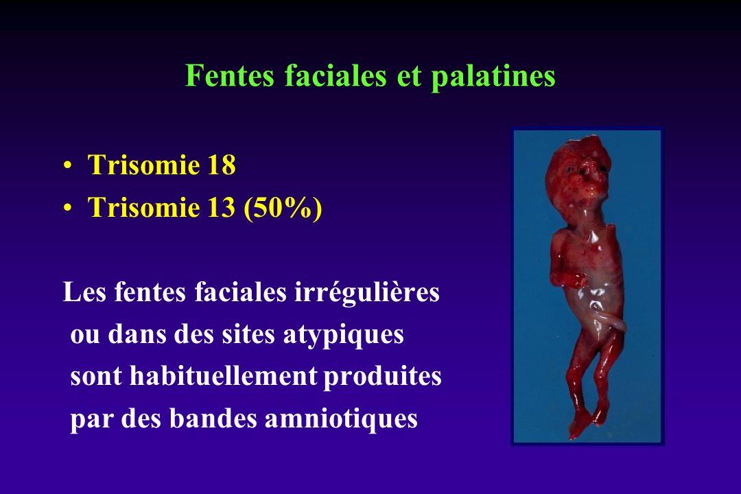 Trisomie 18 Trisomie 13 (50%) Les fentes faciales irrégulières ou dans des sites atypiques sont habituellement produites par des bandes amniotiques Fentes faciales et palatines