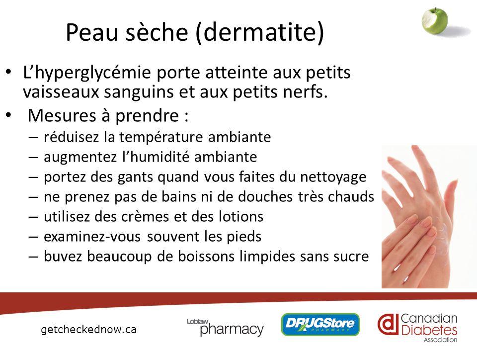 getcheckednow.ca Peau sèche ( dermatite) Lhyperglycémie porte atteinte aux petits vaisseaux sanguins et aux petits nerfs. Mesures à prendre : – réduis