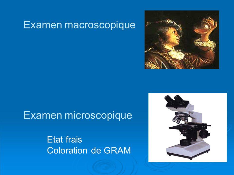 Examen macroscopique Examen microscopique Etat frais Coloration de GRAM