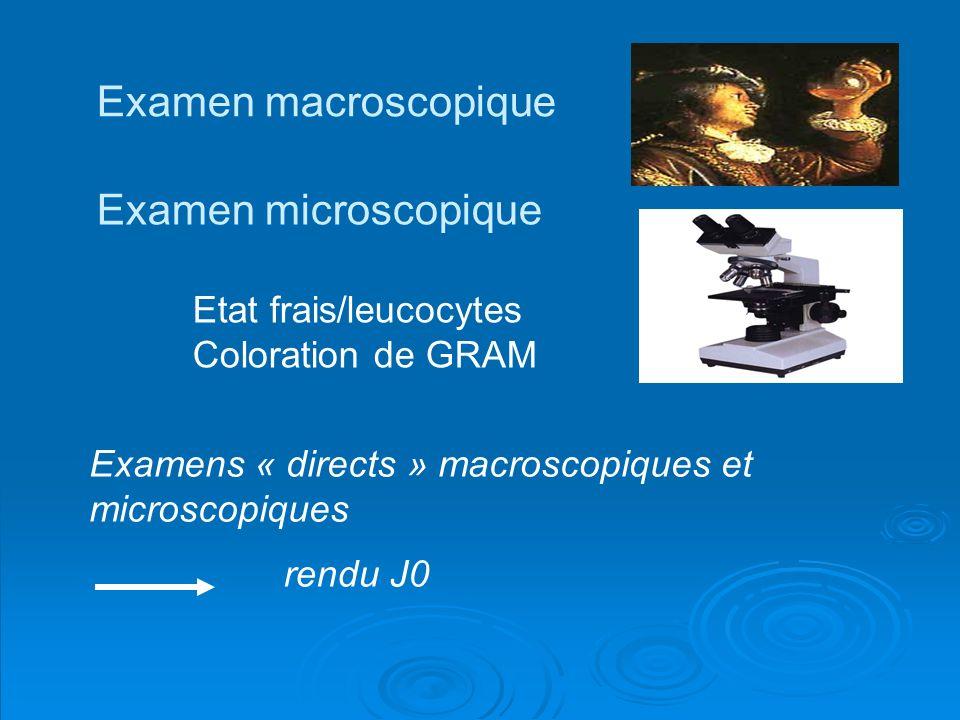 Examen macroscopique Examen microscopique Etat frais/leucocytes Coloration de GRAM Examens « directs » macroscopiques et microscopiques rendu J0