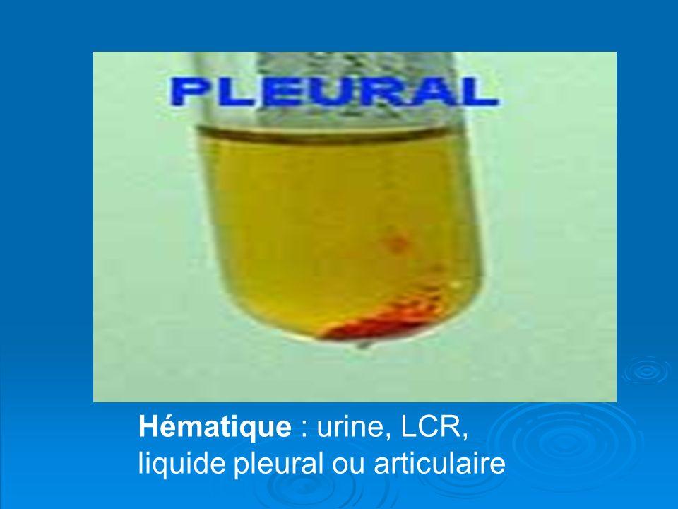 Consistance : Exemple d une selle liquide.