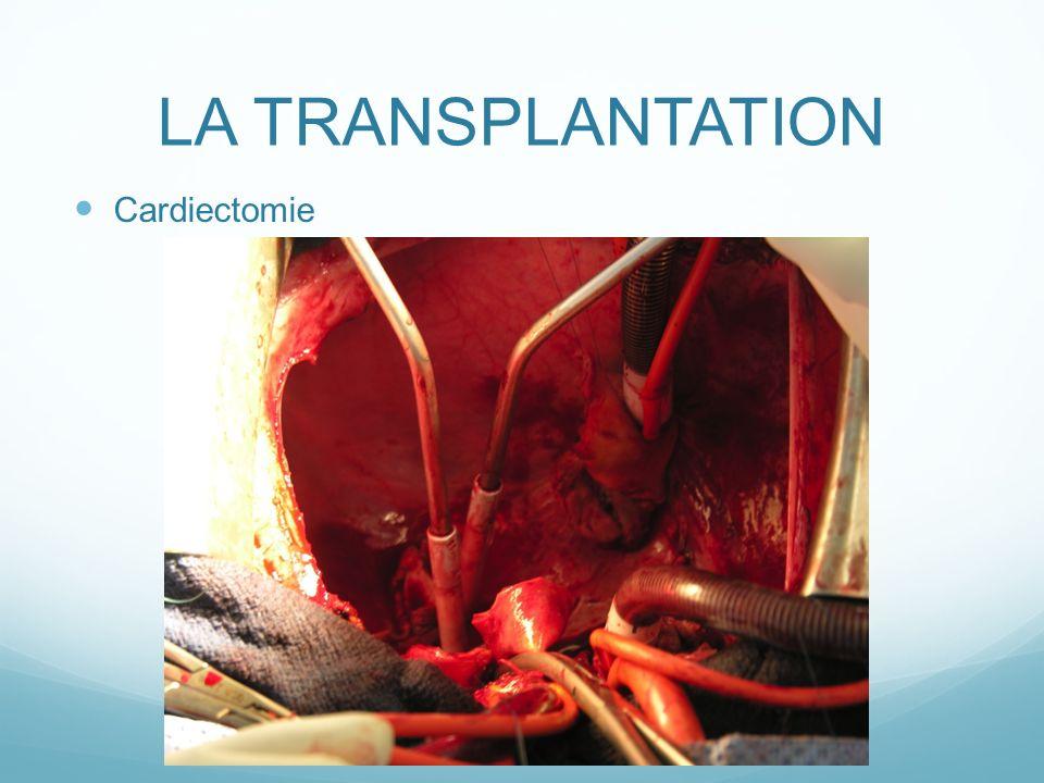 LA TRANSPLANTATION Cardiectomie