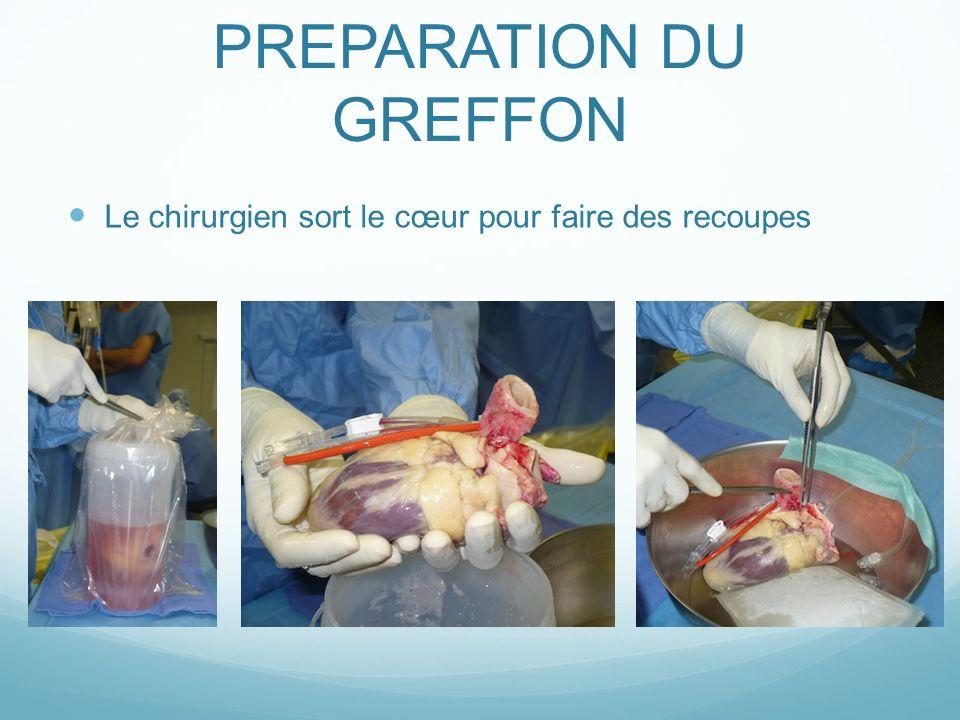 PREPARATION DU GREFFON Le chirurgien sort le cœur pour faire des recoupes