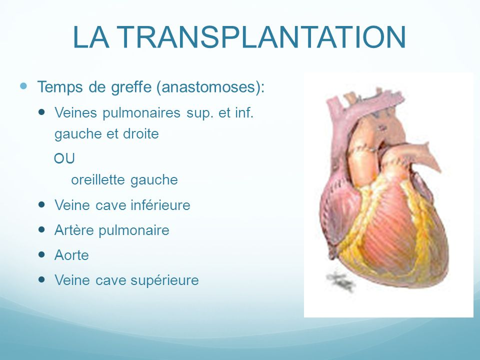 LA TRANSPLANTATION Temps de greffe (anastomoses): Veines pulmonaires sup.