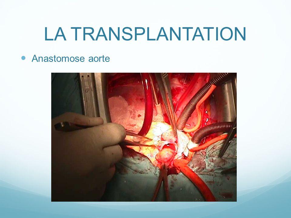 LA TRANSPLANTATION Anastomose aorte
