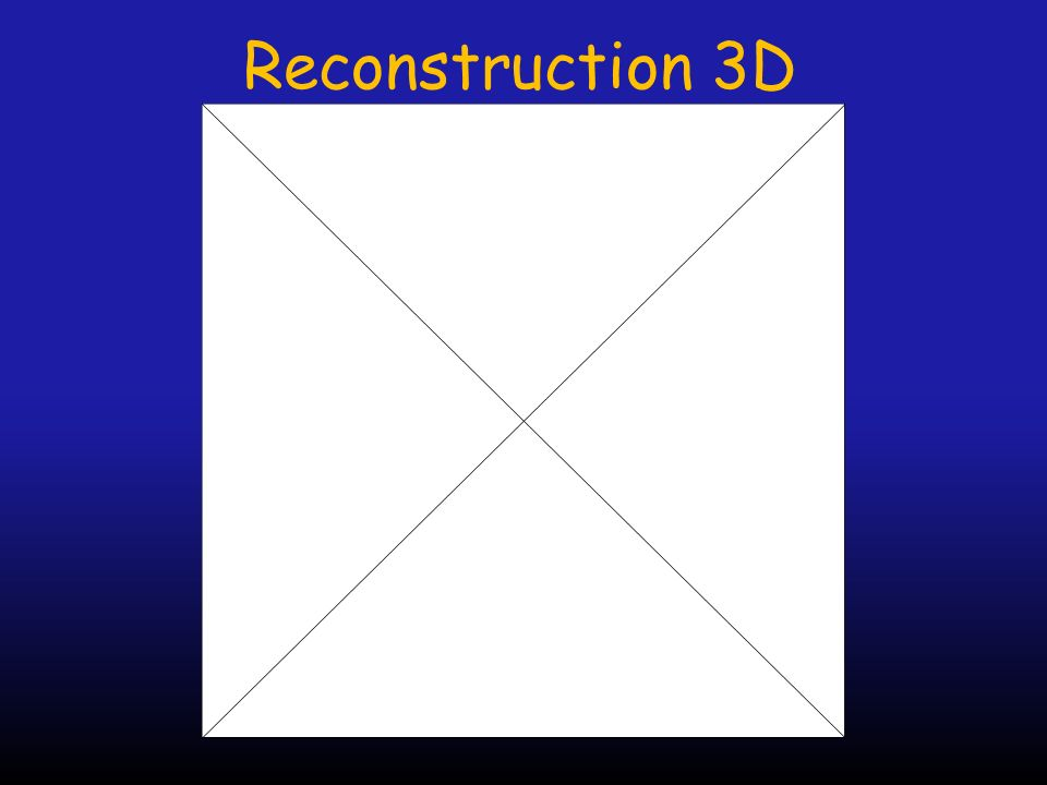 Reconstruction 3D