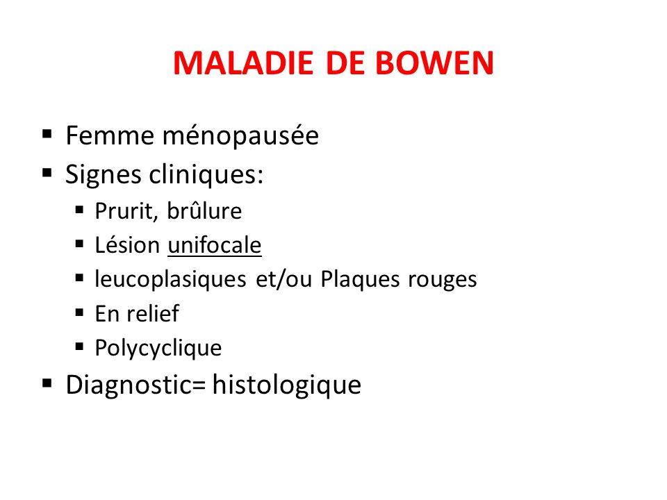 MALADIE DE BOWEN Femme ménopausée Signes cliniques: Prurit, brûlure Lésion unifocale leucoplasiques et/ou Plaques rouges En relief Polycyclique Diagno