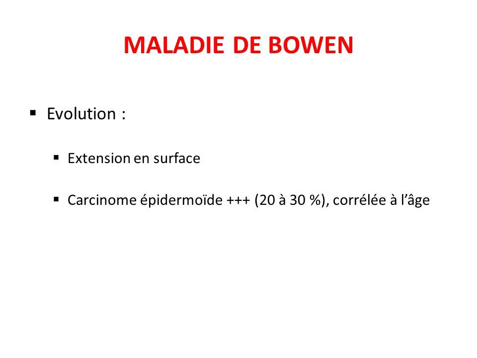 MALADIE DE BOWEN Evolution : Extension en surface Carcinome épidermoïde +++ (20 à 30 %), corrélée à lâge