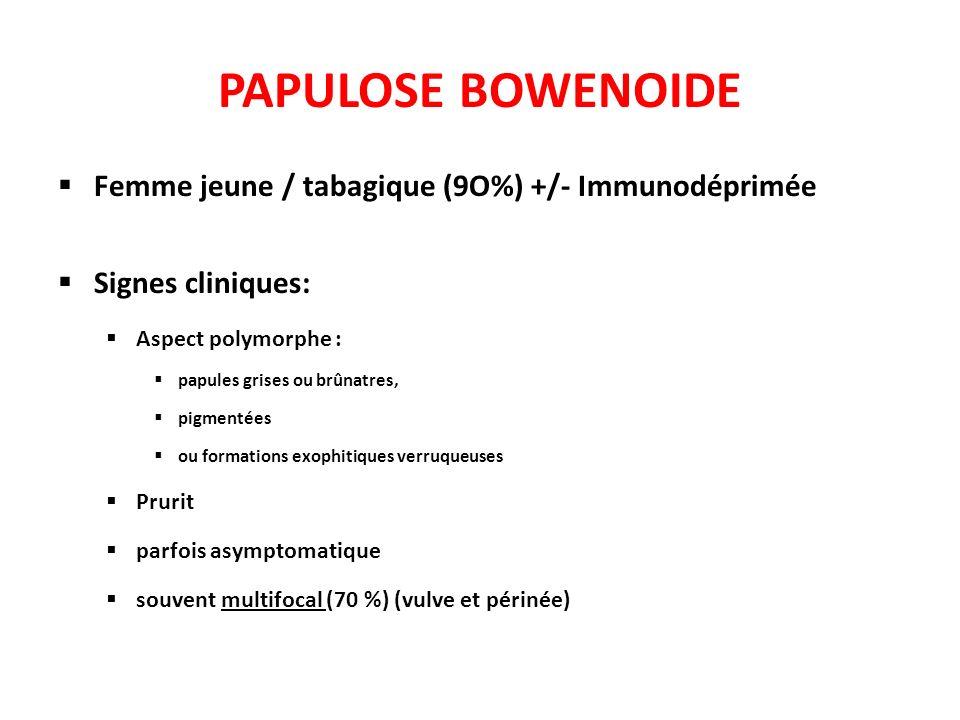 PAPULOSE BOWENOIDE Femme jeune / tabagique (9O%) +/- Immunodéprimée Signes cliniques: Aspect polymorphe : papules grises ou brûnatres, pigmentées ou f