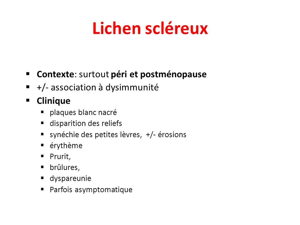 Lichen scléreux Contexte: surtout péri et postménopause +/- association à dysimmunité Clinique plaques blanc nacré disparition des reliefs synéchie de