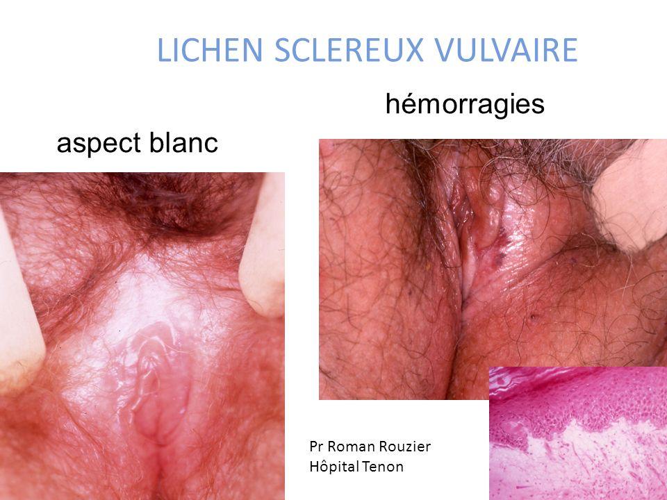 LICHEN SCLEREUX VULVAIRE aspect blanc hémorragies Pr Roman Rouzier Hôpital Tenon