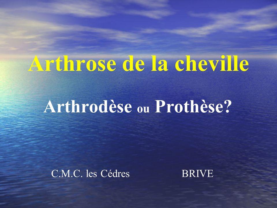 C.M.C. les Cédres BRIVE Arthrose de la cheville Arthrodèse ou Prothèse?