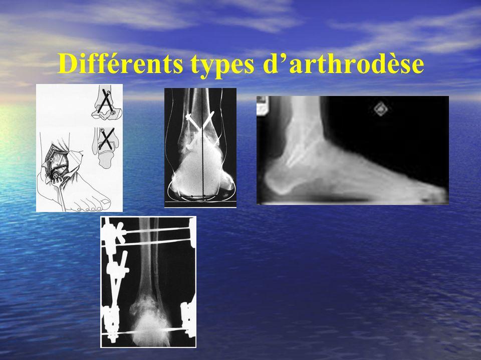 Différents types darthrodèse