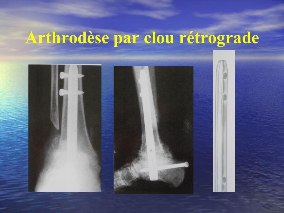 Arthrodèse par clou rétrograde