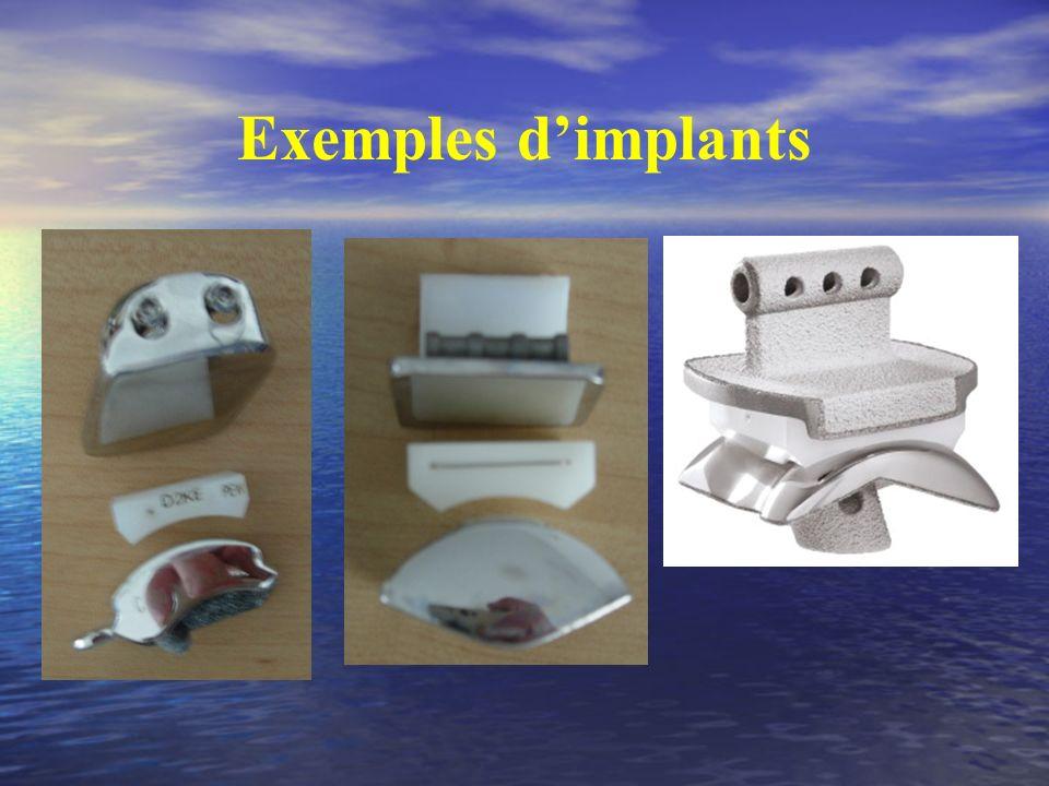 Exemples dimplants