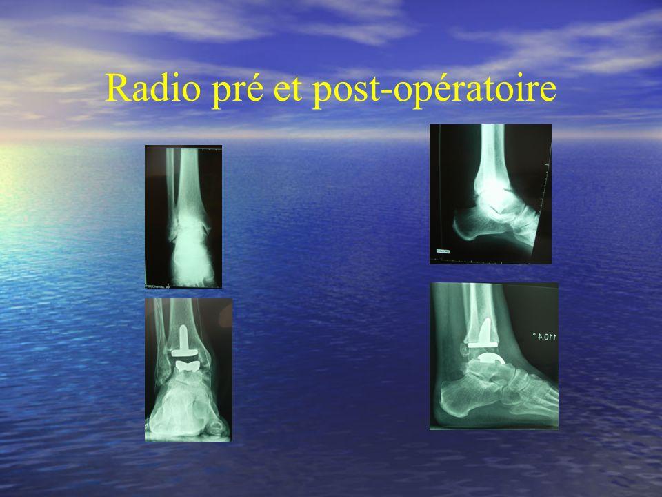Radio pré et post-opératoire
