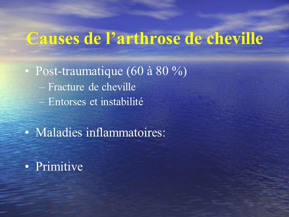 Causes de larthrose de cheville Post-traumatique (60 à 80 %) –Fracture de cheville –Entorses et instabilité Maladies inflammatoires: Primitive