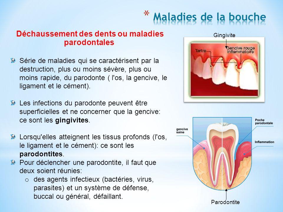 Déchaussement des dents ou maladies parodontales Série de maladies qui se caractérisent par la destruction, plus ou moins sévère, plus ou moins rapide