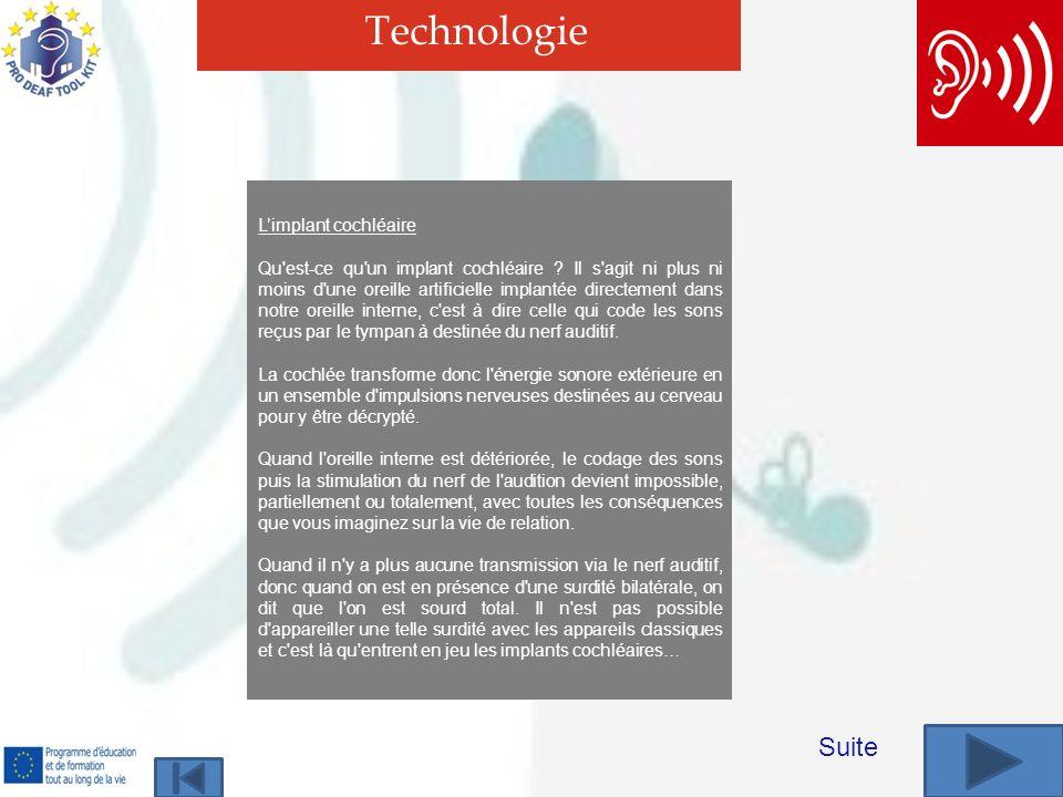 Technologie Suite Limplant cochléaire Qu est-ce qu un implant cochléaire .