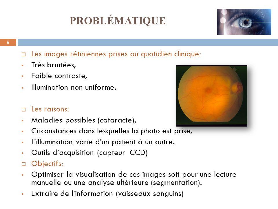 6 Les images rétiniennes prises au quotidien clinique: Très bruitées, Faible contraste, Illumination non uniforme. Les raisons: Maladies possibles (ca