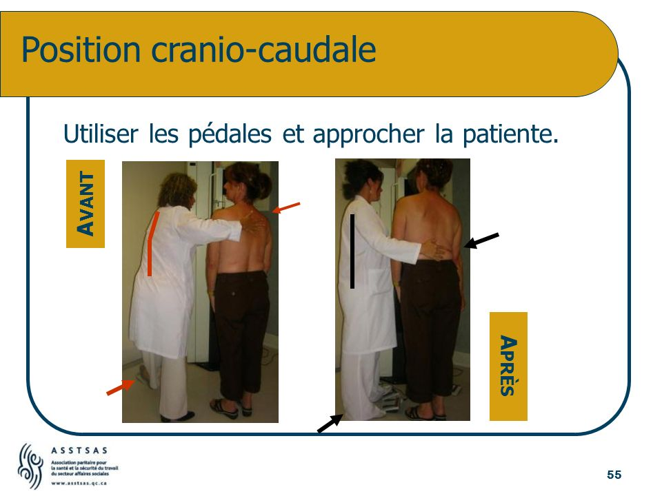 Utiliser les pédales et approcher la patiente. Position cranio-caudale A VANT A PRÈS 55