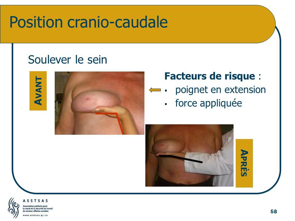 Soulever le sein Position cranio-caudale A VANT A PRÈS Facteurs de risque : poignet en extension force appliquée 58