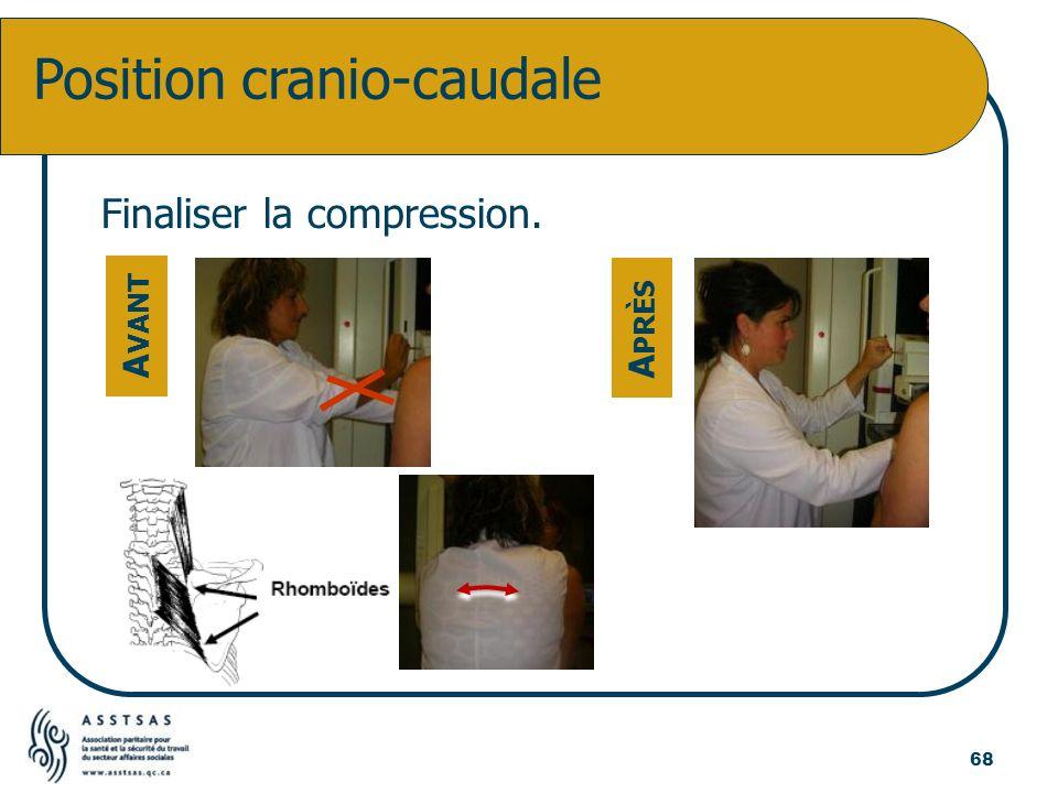 Position cranio-caudale A VANT A PRÈS Finaliser la compression. 68