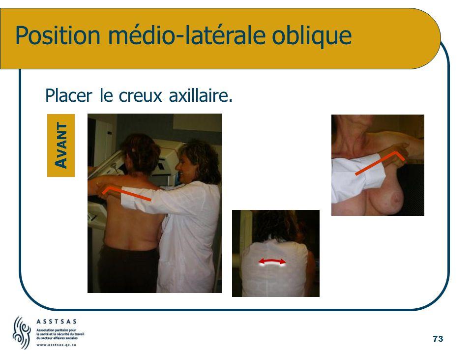 Position médio-latérale oblique Placer le creux axillaire. A VANT 73