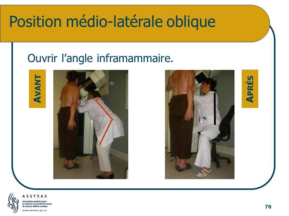 Position médio-latérale oblique Ouvrir langle inframammaire. A VANT A PRÈS 76