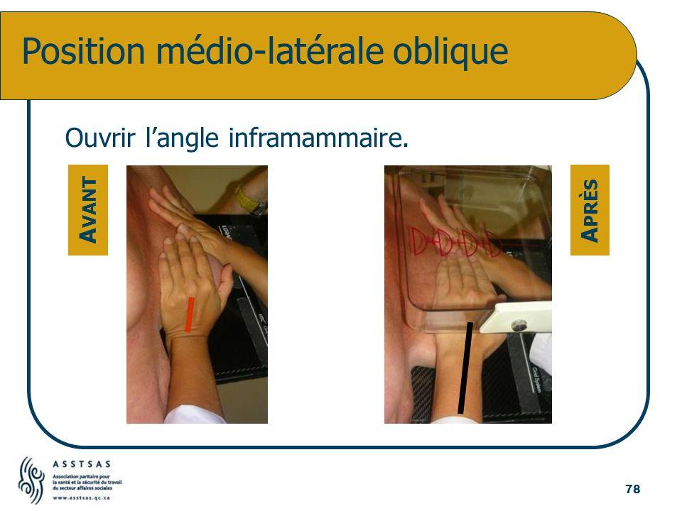 Position médio-latérale oblique Ouvrir langle inframammaire. A VANT A PRÈS 78
