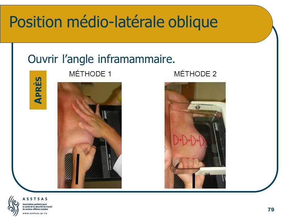 Position médio-latérale oblique Ouvrir langle inframammaire. A PRÈS 79 MÉTHODE 1MÉTHODE 2