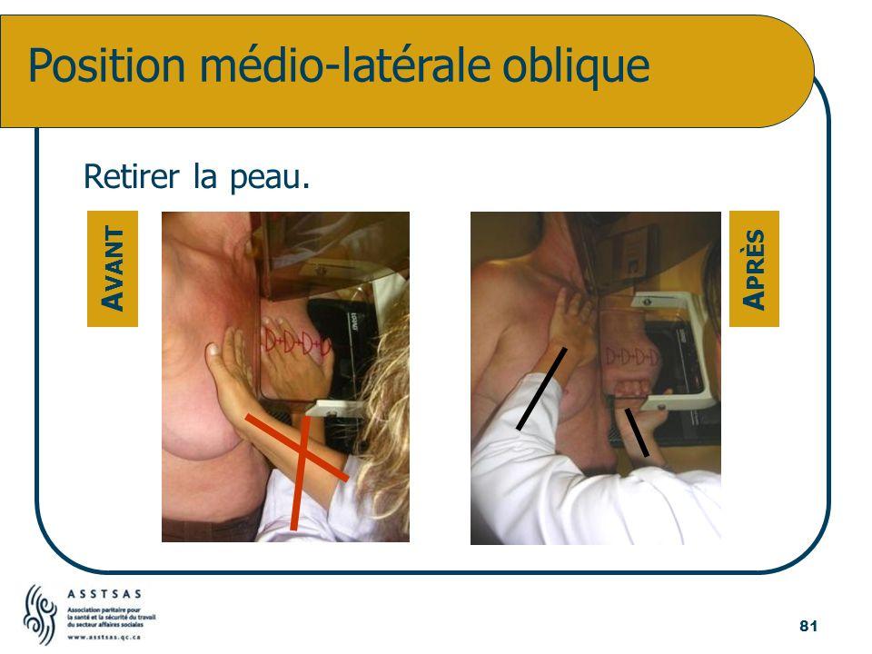 Position médio-latérale oblique Retirer la peau. A VANT A PRÈS 81