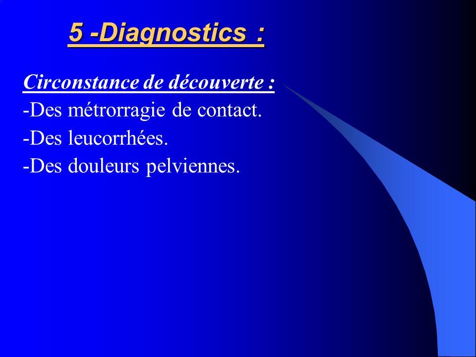 5 -Diagnostics : 5 -Diagnostics : Circonstance de découverte : -Des métrorragie de contact. -Des leucorrhées. -Des douleurs pelviennes.