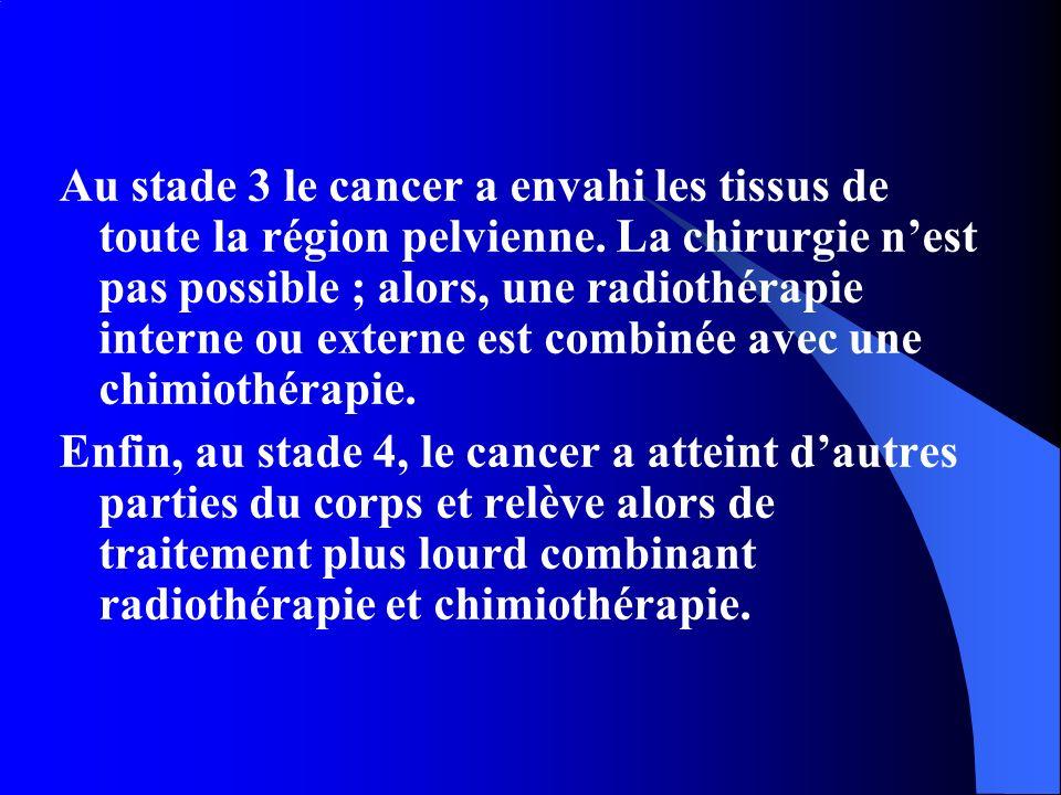 Au stade 3 le cancer a envahi les tissus de toute la région pelvienne. La chirurgie nest pas possible ; alors, une radiothérapie interne ou externe es