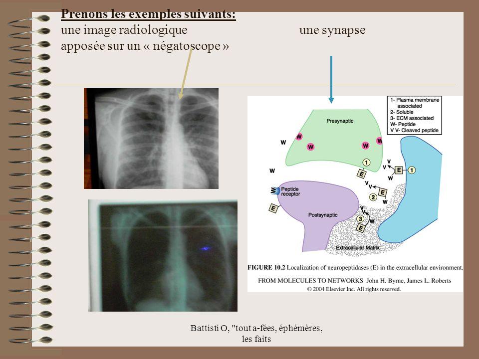 Battisti O, tout a-fées, éphémères, les faits Prenons les exemples suivants: une image radiologique une synapse apposée sur un « négatoscope »