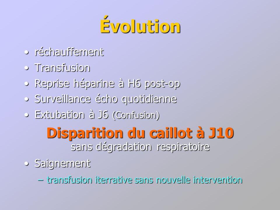 réchauffementréchauffement TransfusionTransfusion Reprise héparine à H6 post-opReprise héparine à H6 post-op Surveillance écho quotidienneSurveillance