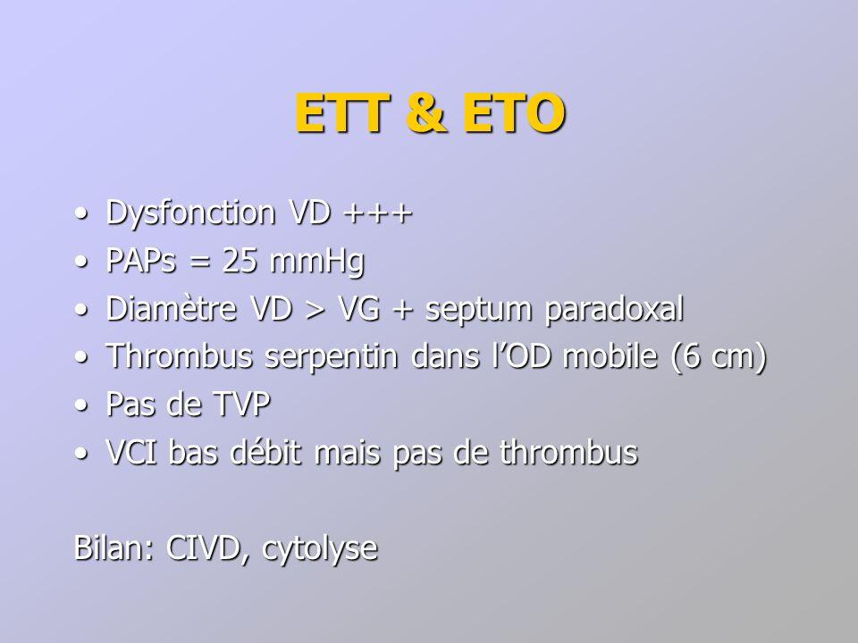 ETT & ETO Dysfonction VD +++Dysfonction VD +++ PAPs = 25 mmHgPAPs = 25 mmHg Diamètre VD > VG + septum paradoxalDiamètre VD > VG + septum paradoxal Thr