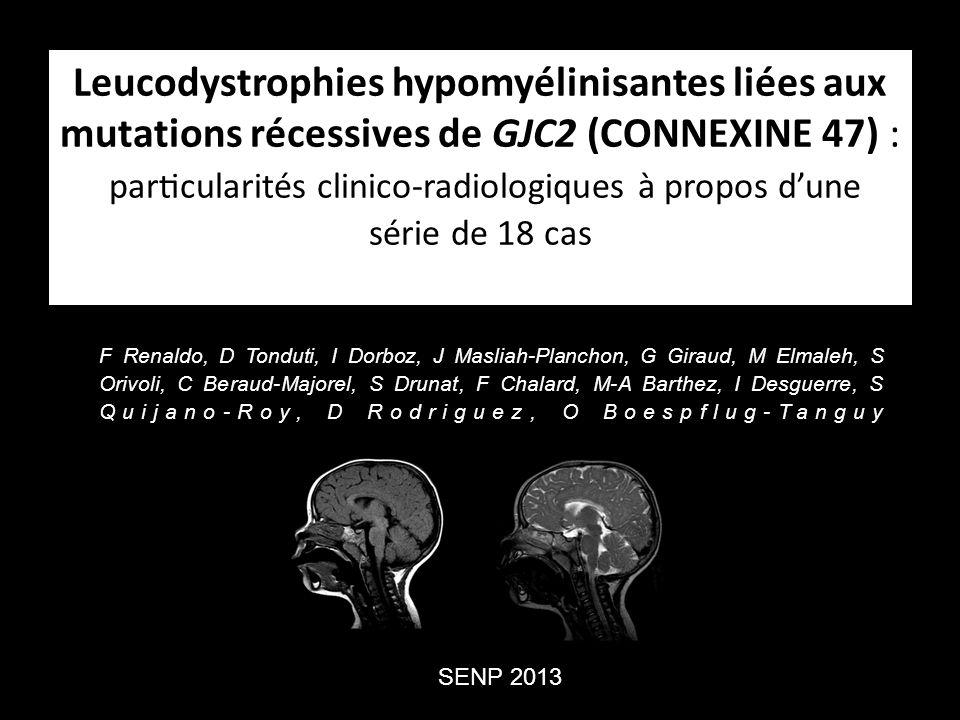 Leucodystrophies hypomyélinisantes PMD ou HDL1 (Maladie de Pelizaeus-Merzbacher ) = liée à LX, mutations PLP1.